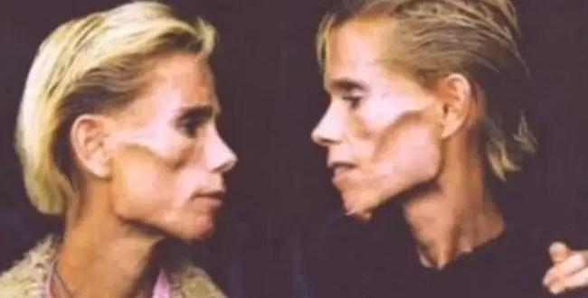 Estremecedora historia de las gemelas anoréxicas que murieron juntas