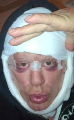 Fotos impactantes: Mickey Rourke luego de la cirugía plástica