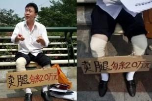 Un hombre vende sus piernas para poder operarse
