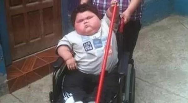 Niño tiene menos de dos años y pesa 38 kilos