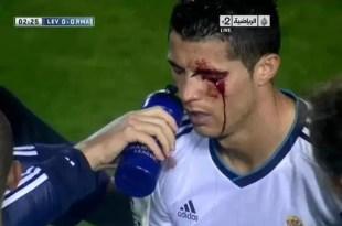 Video: brutal golpe a Cristiano Ronaldo durante un partido