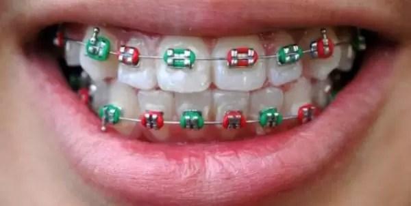 La nueva tendencia furor: ortodoncia en colores