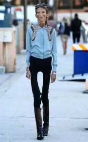 Fotos impresionantes: Tiene anorexia y lucha por su vida