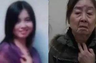 Foto: Extraña enfermedad la hace envejecer 43 años