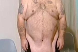 Foto: Bajó 95 kilos y ahora la panza le llega a las rodillas
