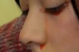 Conmoción en Chile por joven que llora sangre - Video