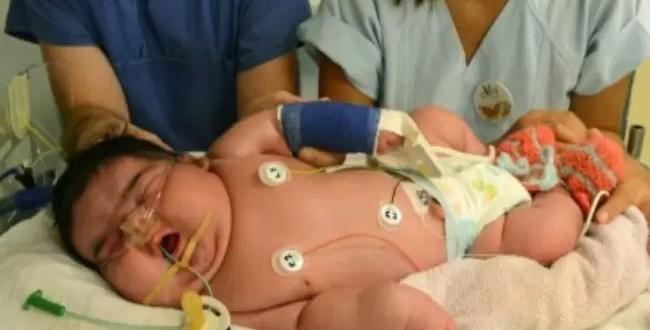 Insólito: El bebé más grande del mundo nació sin cesárea - Foto