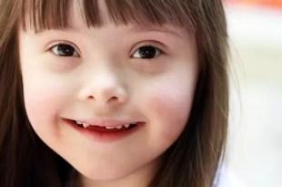 La manipulación de un gen corregiría el síndrome de Down