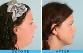 """Cirugía de mandíbula: 15 fotos del """"antes y después"""""""