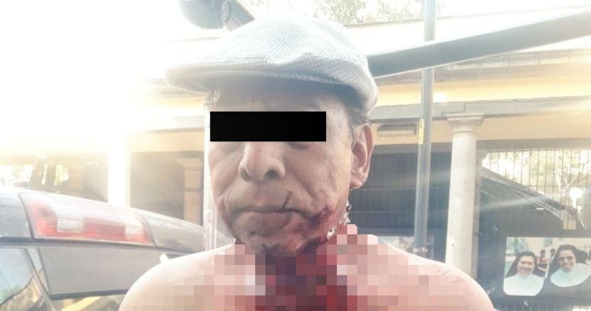 acuchillado1 - Una pareja en el Estado de México transmite abuso a su hija de 8 años por Facebook Live