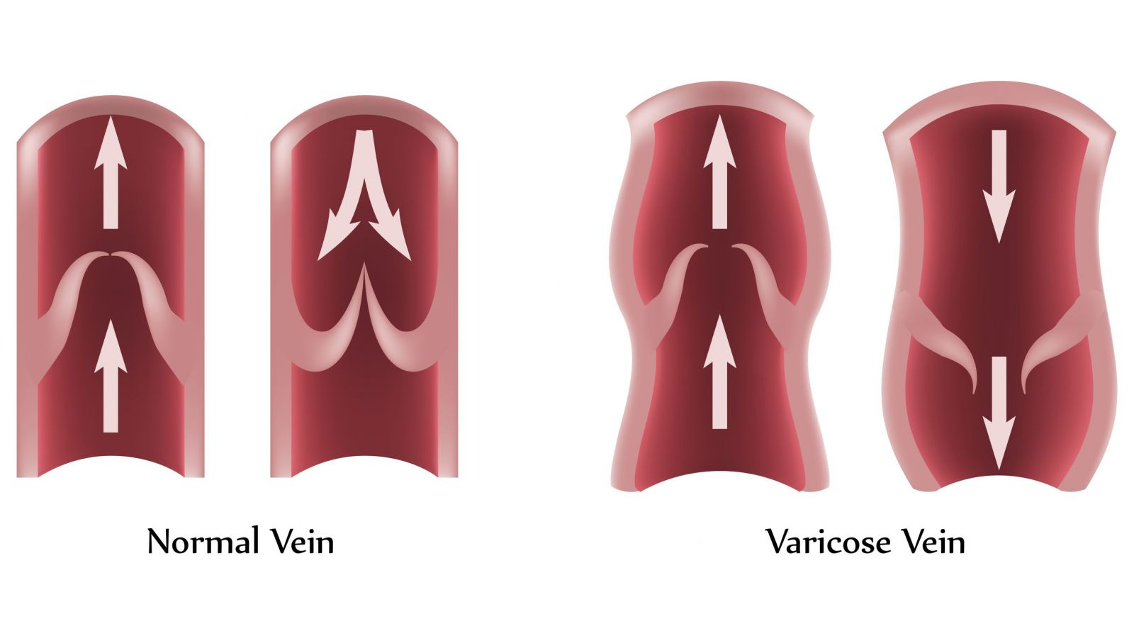 Varicose Veins Singapore Diagnosis Cause Symptom Blood Flow