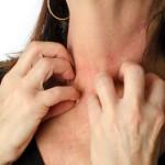 Enfermedad Celíaca y Dermatitis Herpetiforme