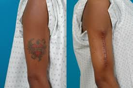 In Which The Entire Tattoo Is Cut Away The Skin Is Then Drawn Together And Stitched With Sutures This Is A Popular Method Of Tattoo Removal