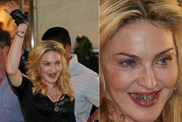 Madonna usando jóias nos dentes