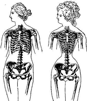 corset reduçao cintura