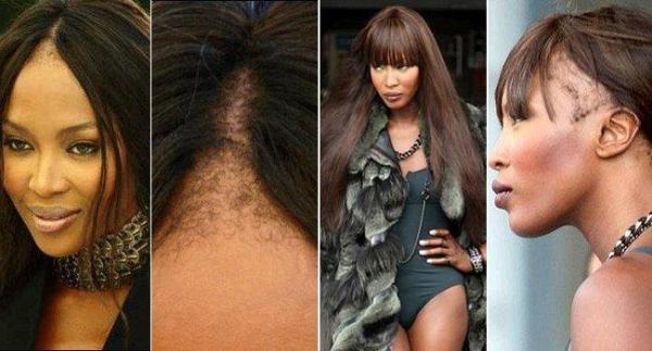 Naomi Campbell teve probleas com mega hair