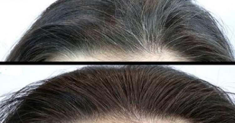 veja como acabar com os cabelos brancos