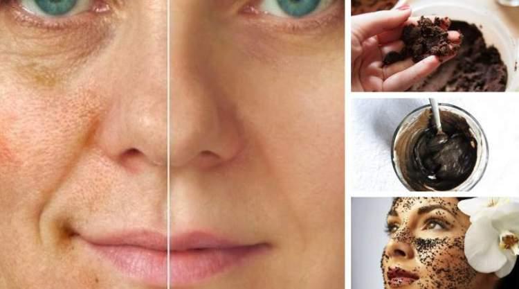 Como fazer a máscara facial caseira que clareia as manhas