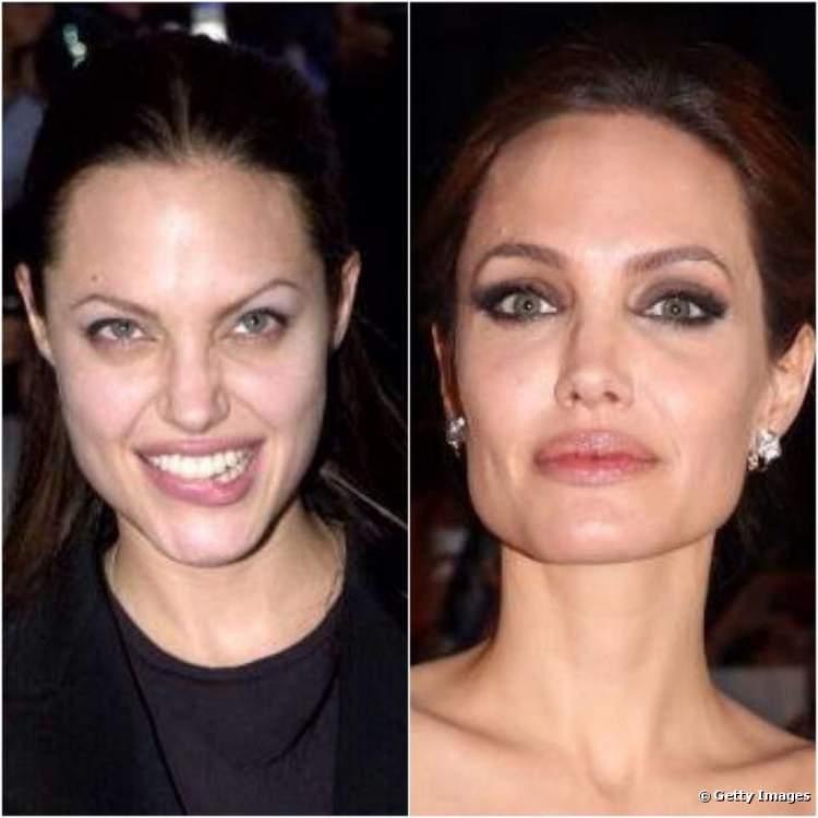 Sobrancelhas da Angelina Jolie - Antes e Depois