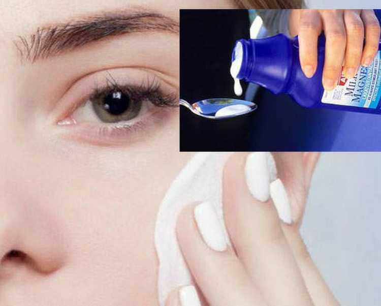 Efeitos colaterais do leite de magnésia na pele