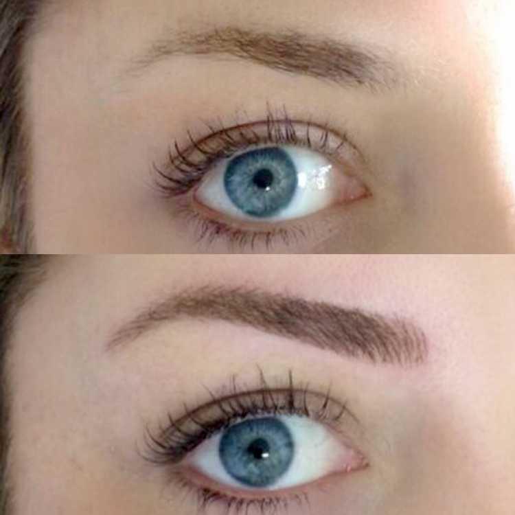 Antes e depois de fazer Micropigmentação de sobrancelha