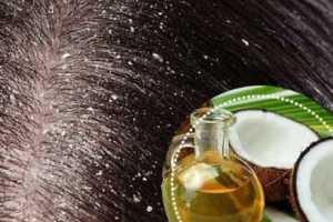 A caspa afeta a pele do couro cabeludo causando descamação. Quando isto acontecer, use as soluções da medicina natural para tratar a caspa no cabelo.