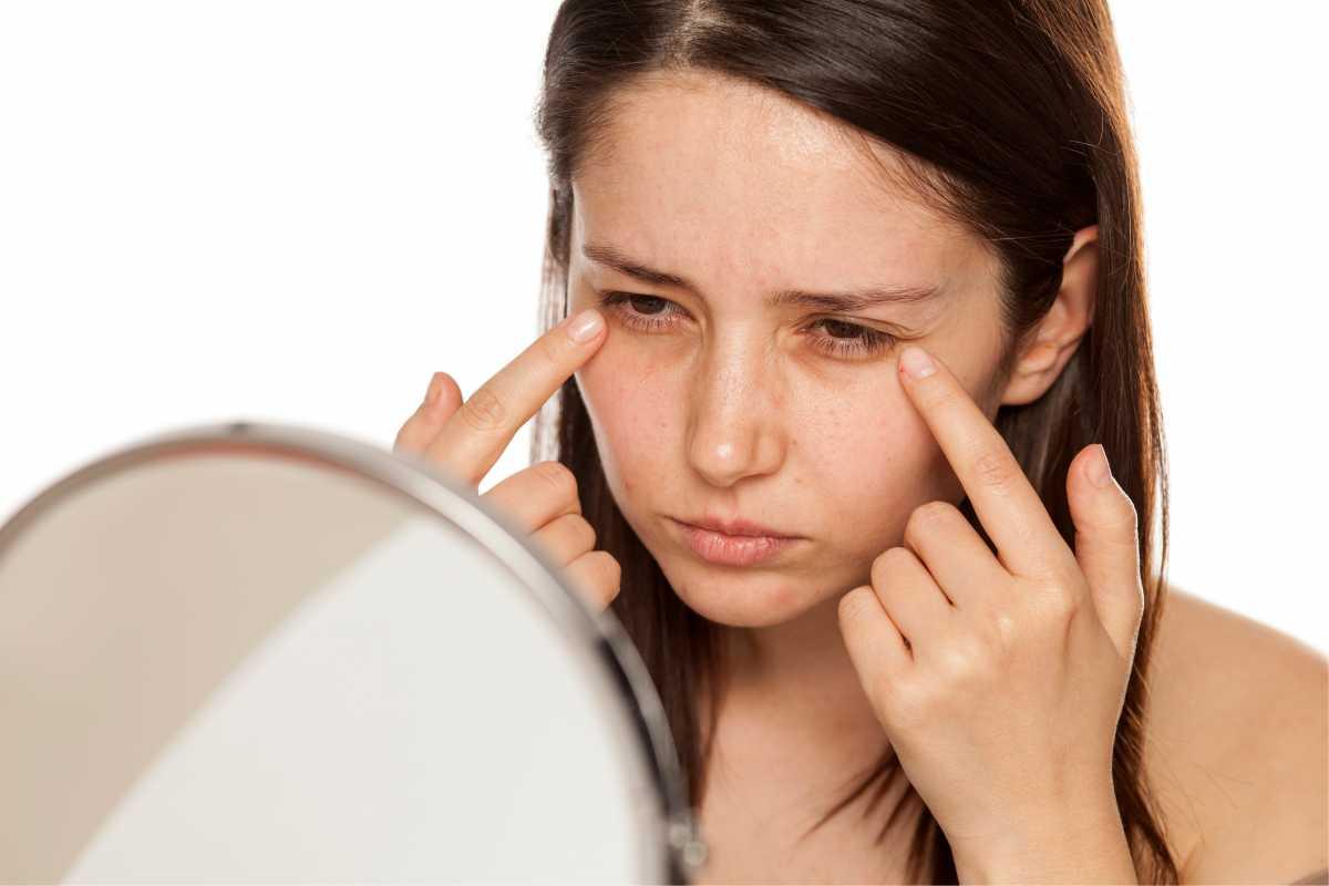 Erros de maquiagem que realçam olheiras ao invés de disfarçá-las