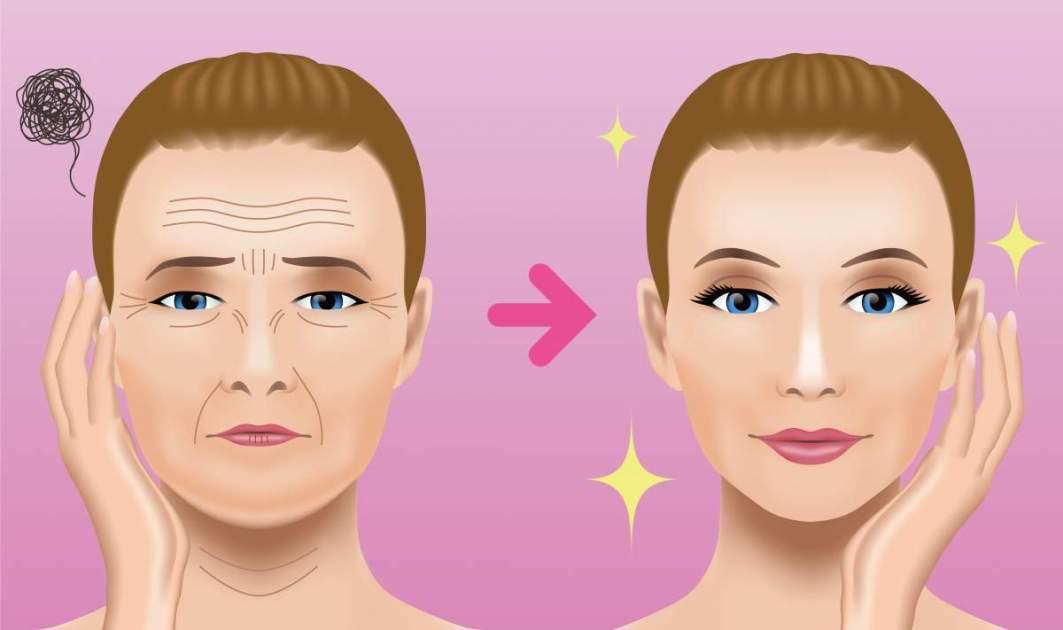 A técnica cirúrgica mais conhecida para o rejuvenescimento facial é a ritidoplastia.