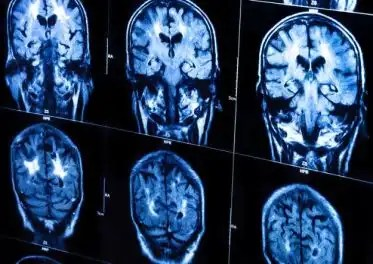Video: El sonido del cerebro cuando piensa