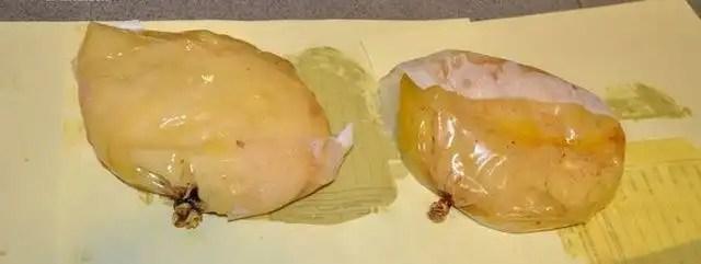 Detienen a mujer con un kilo de cocaína en los implantes de senos - Fotos