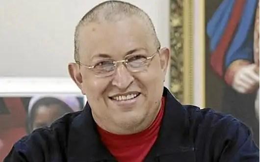 Hugo Chávez estaría en coma inducido
