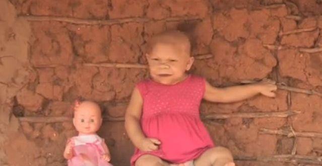 Video: mujer de 31 años encerrada en el cuerpo de un bebé