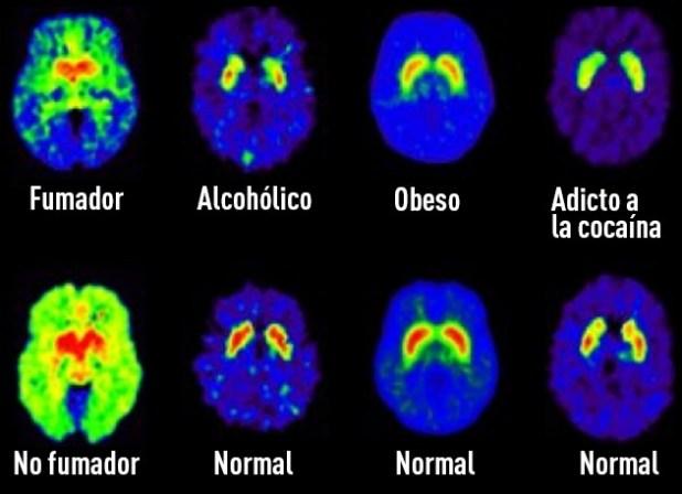 El azúcar produce el mismo efecto que la cocaína en el cerebro