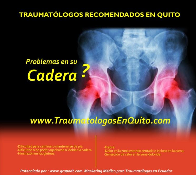 problemas de cadera 1