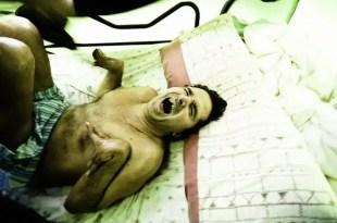 Muere Antonio Meño tras pasar 23 años en coma vegetativo por negligencia médica