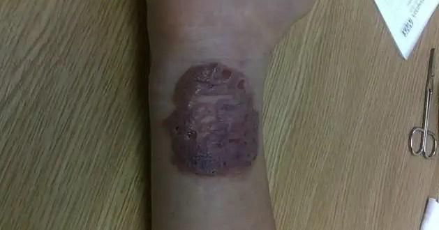 Conoce el peligro de los tatuajes temporales de henna - Fotos
