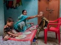 Insólito: Niño con cuerpo de hombre de 110 años-3