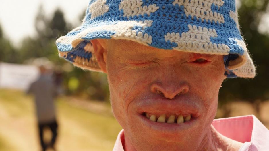 PRI's The world feature Tanzania Albinism Collective