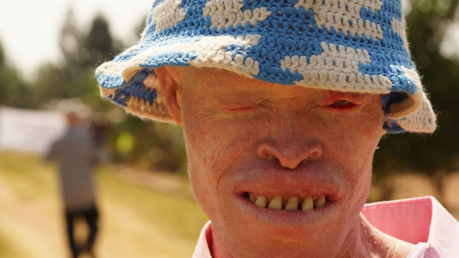 PRI's The world feature Tanzania Albinism Collective