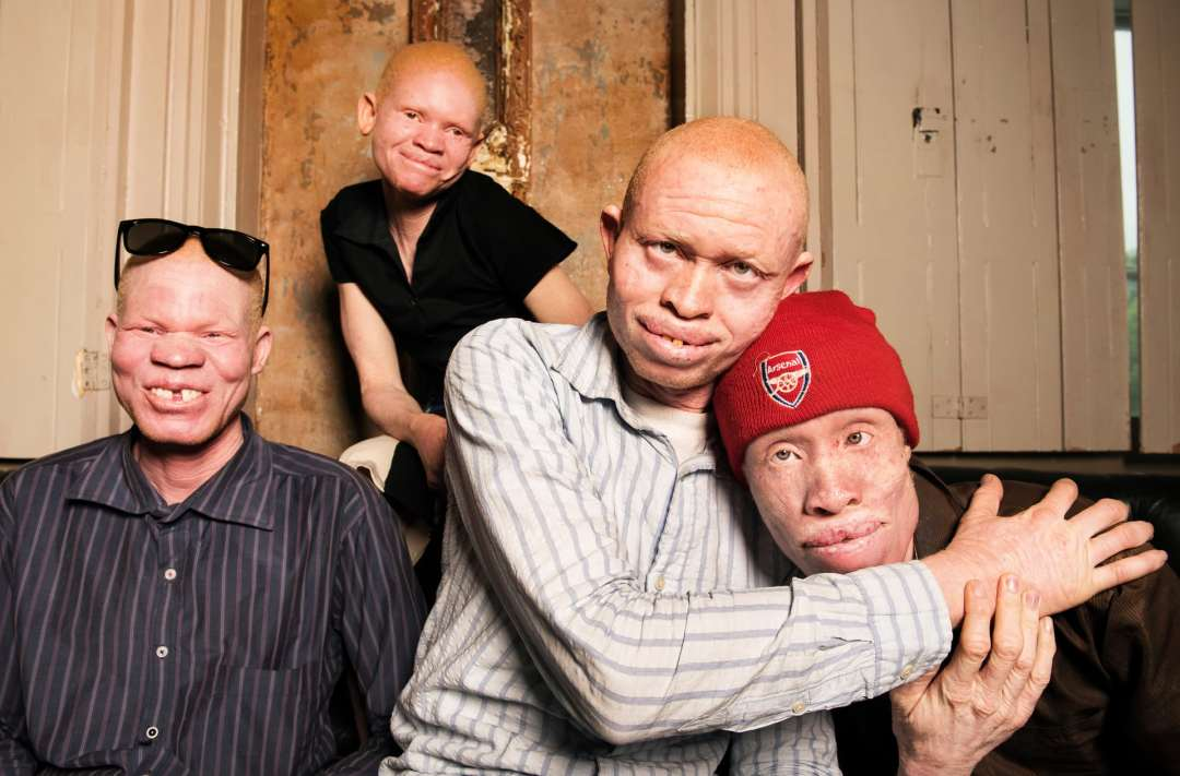 The Guardian feature Tanzania Albinism Collective