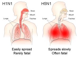 H1N1_versus_H5N1_pathology