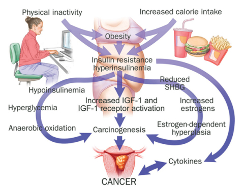 How diabetes, not insulin, causes cancer. The real plausible pathway.