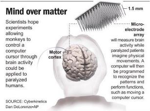Brain implant (JPG)