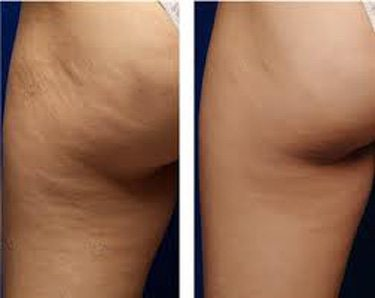 cryotherapy cellulite improvement