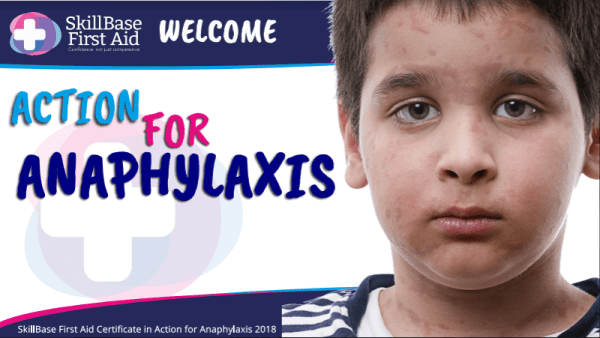 Action for Anaphylaxis Presentation 2018