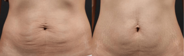 Stomach before and after truSculpt 3D treatment