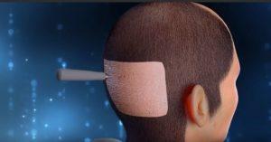 تجارب زراعة الشعر بتقنية DHI في مصر