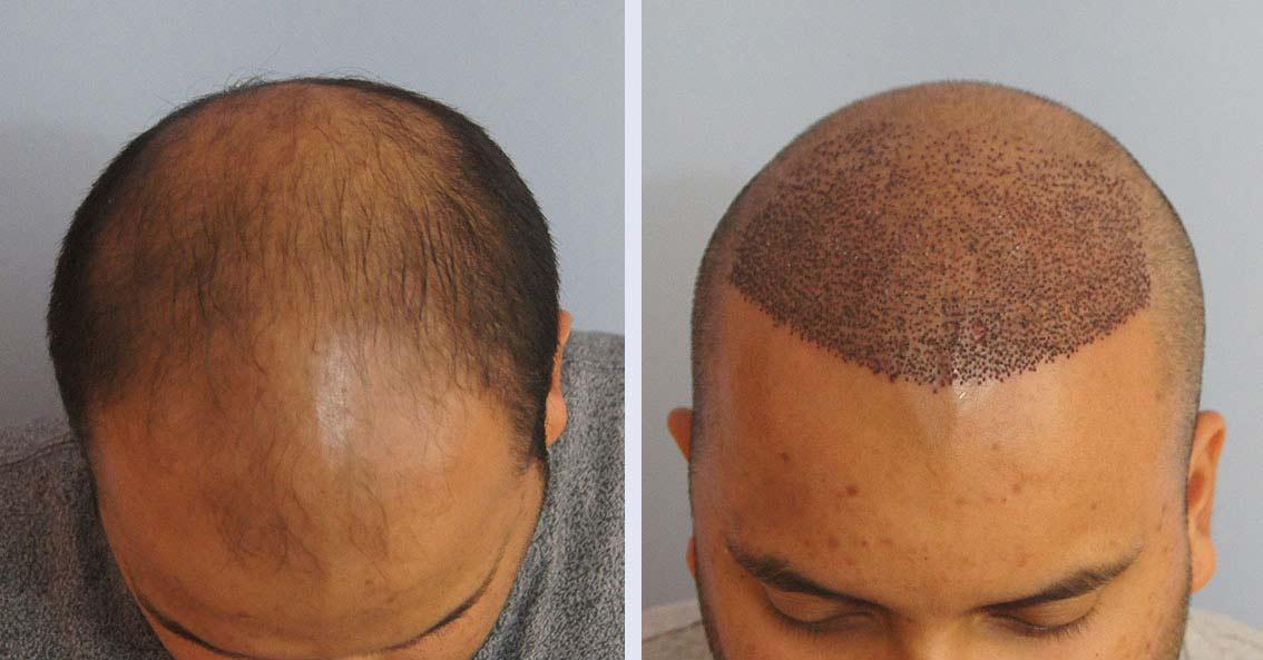 زراعة الشعر في الاسكندرية 2020