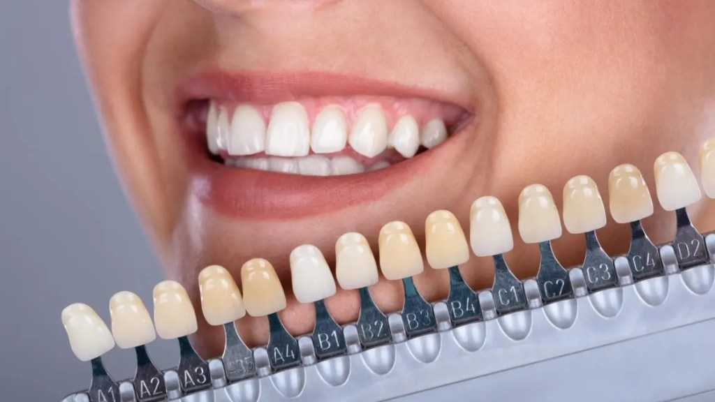 Top Best Teeth Whitening Kits Reviews and Buying Guide