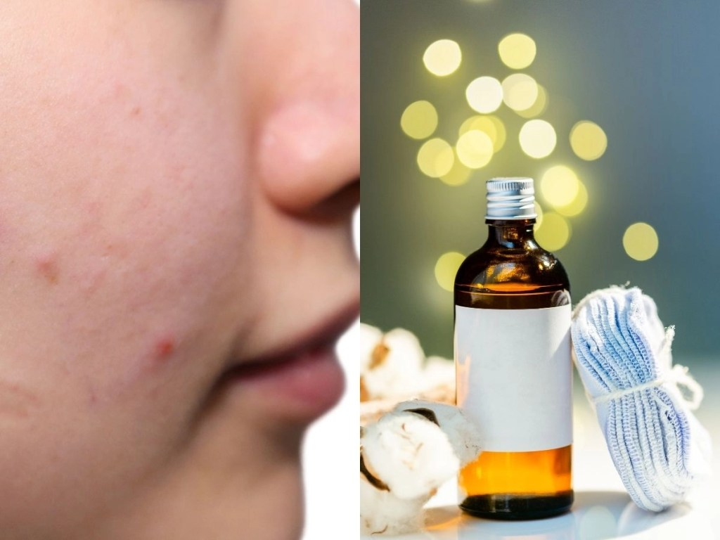 Top 10 Best Face Toners for Acne